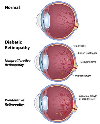 Diabetic Eye Care